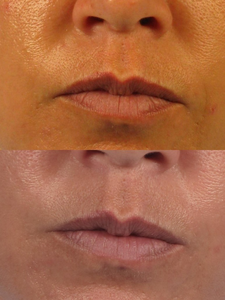 Wrinkle Treatment Fillers Botox Laser Microneedling