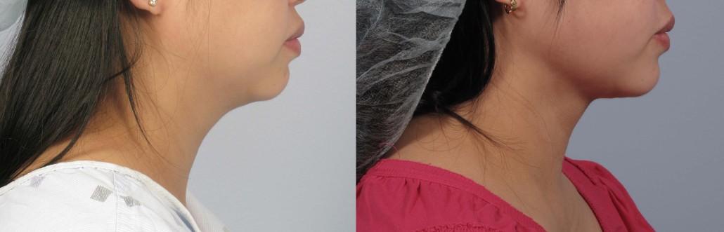 laser neck liposuction nyc