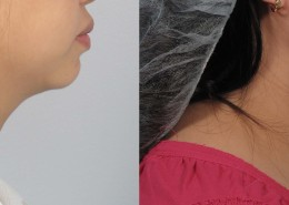 laser neck liposuction nyc