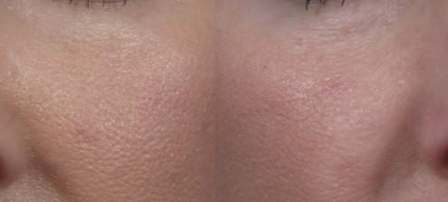Dr. brett kotlus cosmetic oculoplastic nose fill