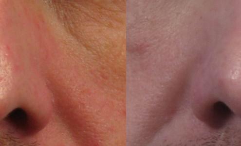 nasal injection scar ny
