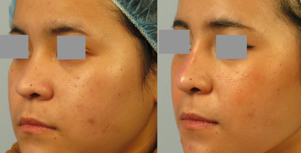 asian nose filler nyc