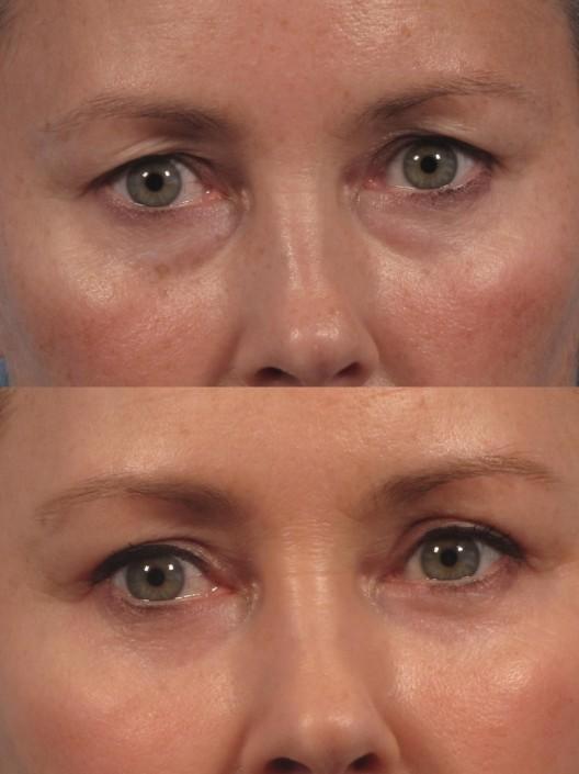 Dr. brett kotlus cosmetic oculoplastic 4-lid blepharoplasty