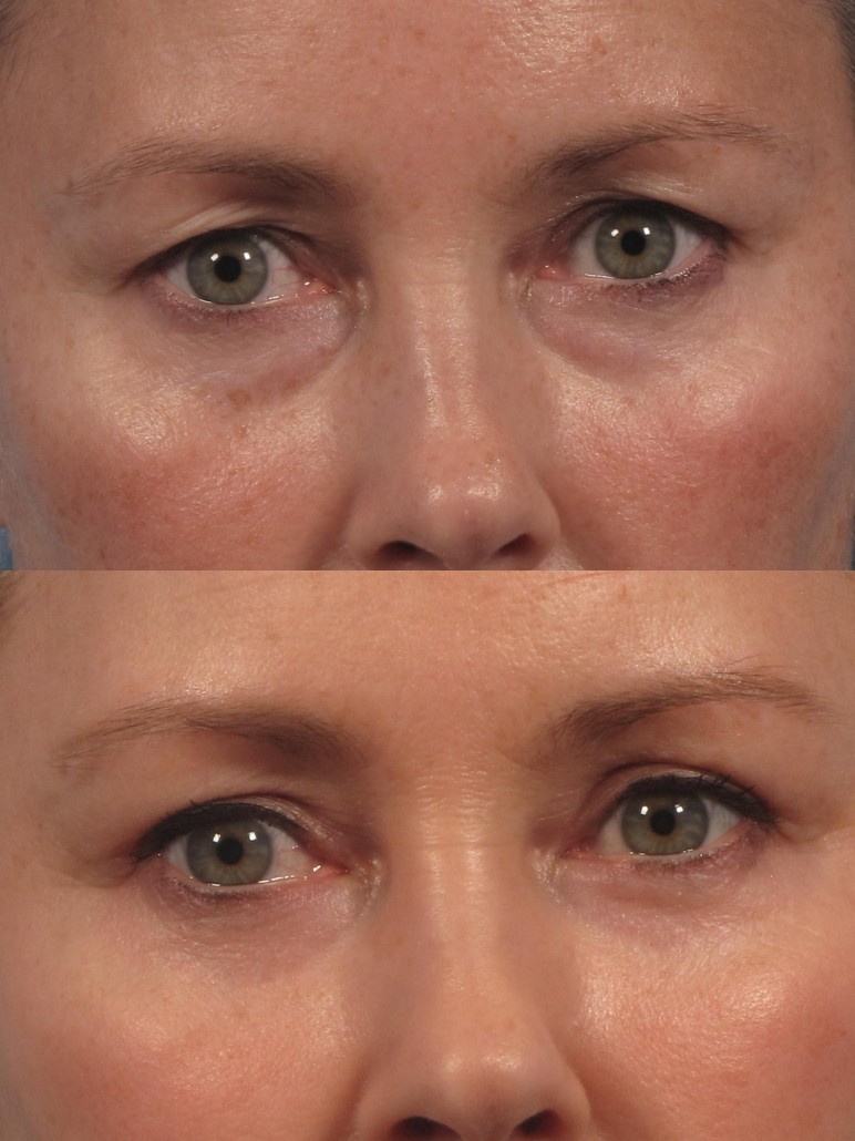 dr. brett kotlus under eye bag remove nyc