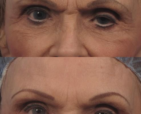 Dr. brett kotlus cosmetic oculoplastic tichophytic brow lift
