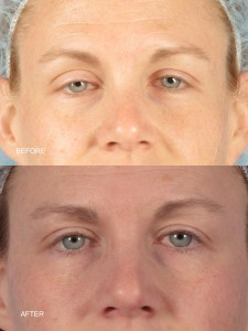 Dr. brett kotlus cosmetic oculoplastic ptosis repair