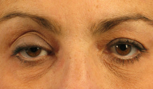 Dr. brett kotlus cosmetic oculoplastic droopy eyelid
