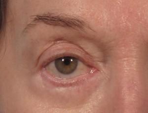 dr. brett kotlus ectropion repair ny
