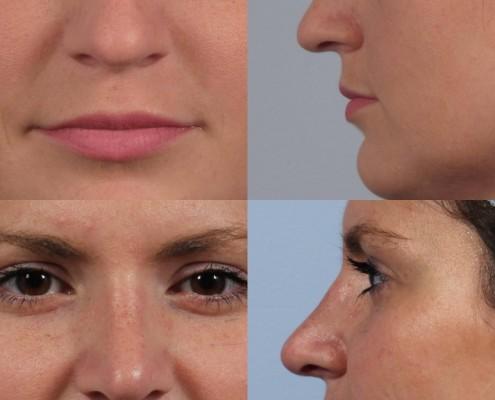 Dr. brett kotlus cosmetic oculoplastic rhinoplasty