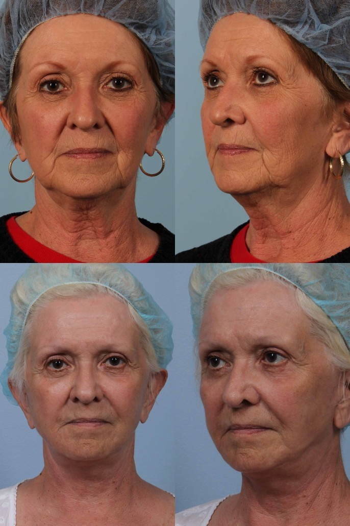 nyc facelift surgery laser