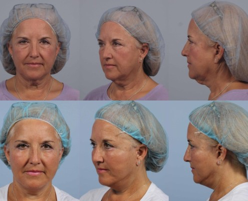 facelift revision nyc