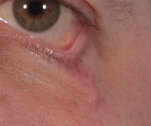 Dr. brett kotlus cosmetic oculoplastic scar retraction