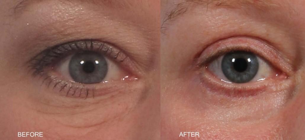 Dr. brett kotlus cosmetic oculoplastic skin pinch blepharoplasty