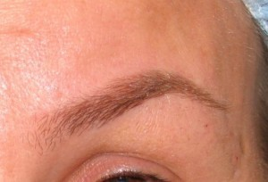 Dr. brett kotlus cosmetic oculoplastic high arch botox