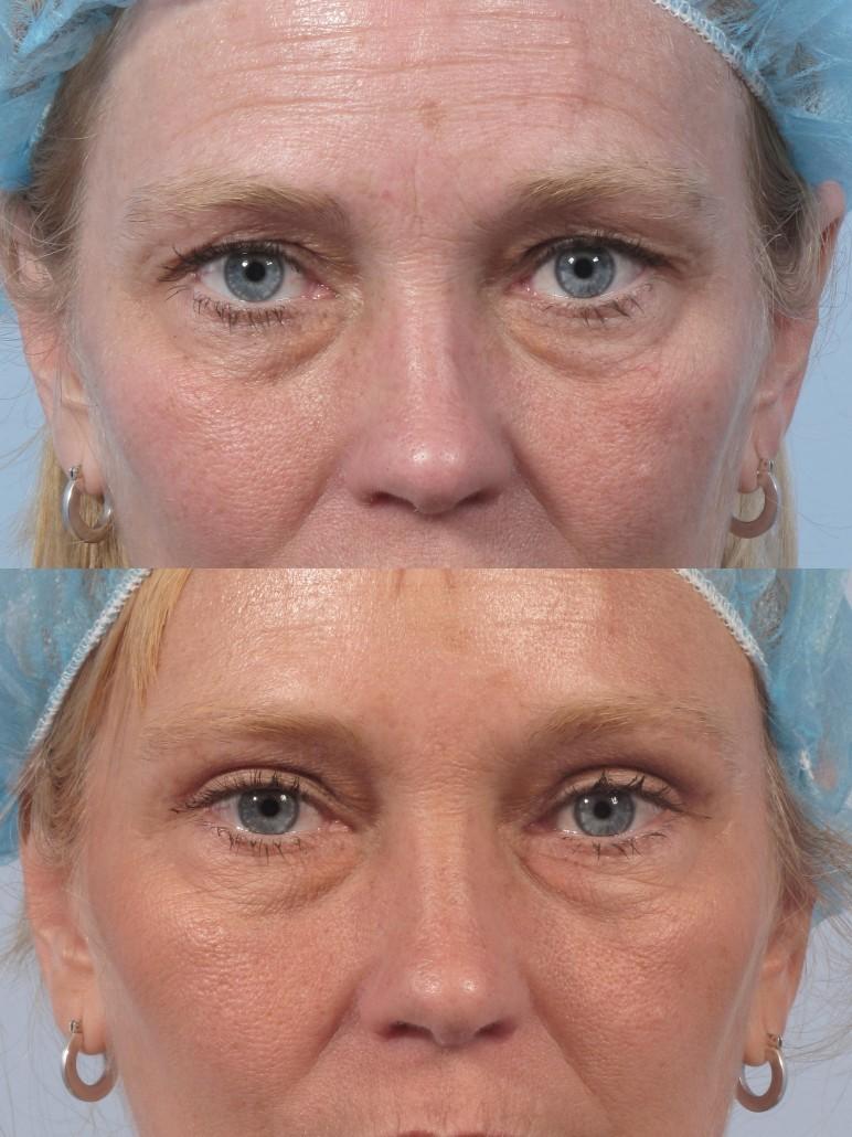 Dr. brett kotlus cosmetic oculoplastic eyelid lift ny