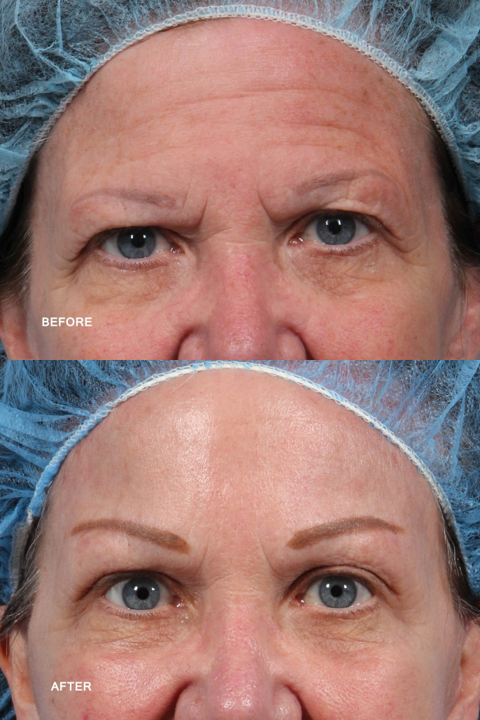hairline brow lift