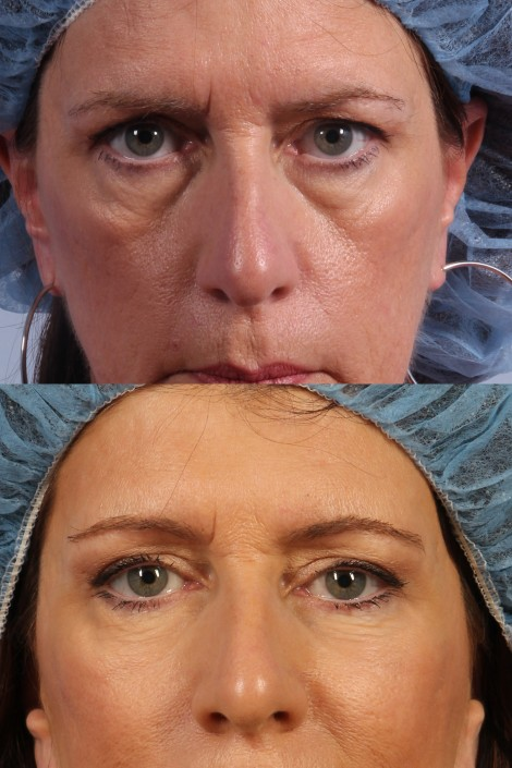 dr. brett kotlus eye bag surgery ny