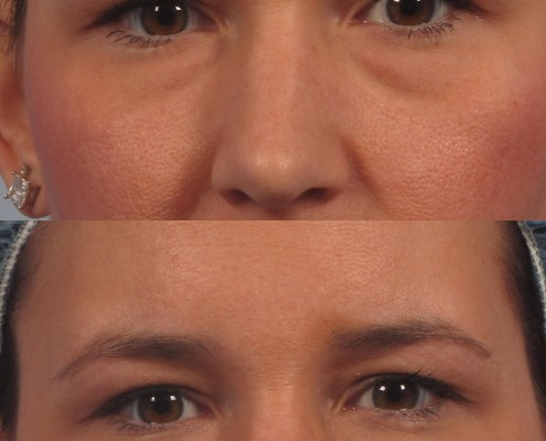 dr. brett kotlus eye bag filler treatment new york