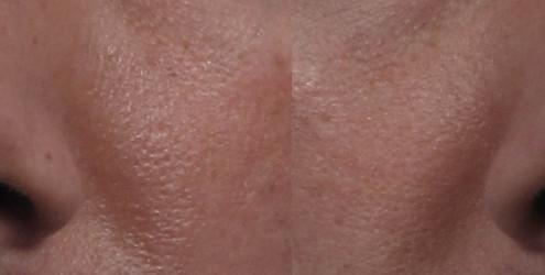 Dr. brett kotlus cosmetic oculoplastic correction rhinoplasty nyc