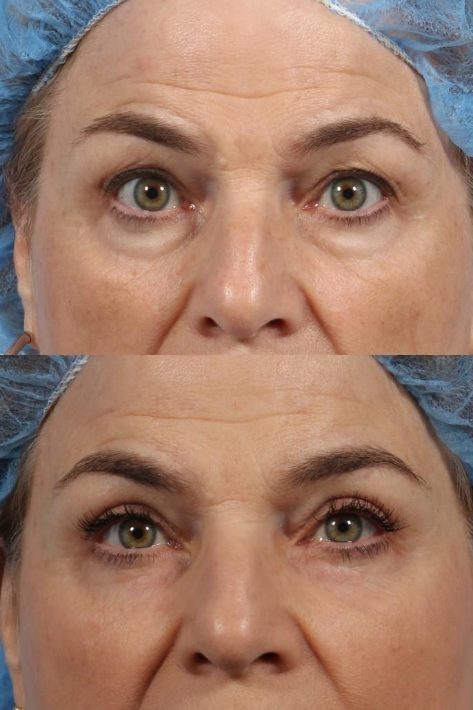 Cosmetic Oculoplastic Eyelid Lift | Dr  Brett Kotlus, Cosmetic