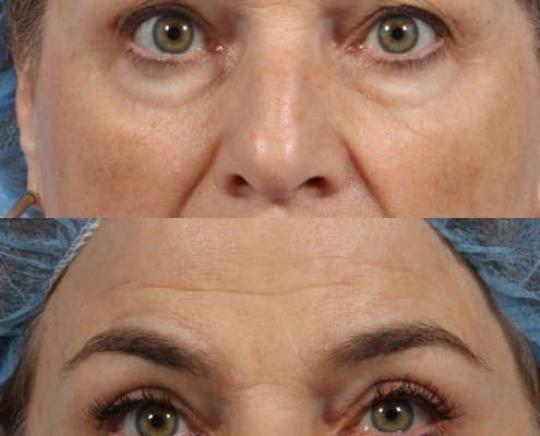 nyc eyelid lift surgery