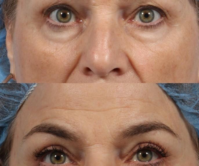 dr. brett kotlus eyelid lift surgery ny