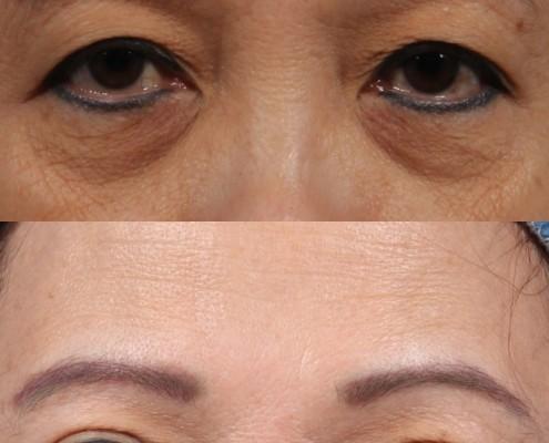 Dr. brett kotlus cosmetic oculoplastic double eyelid lift