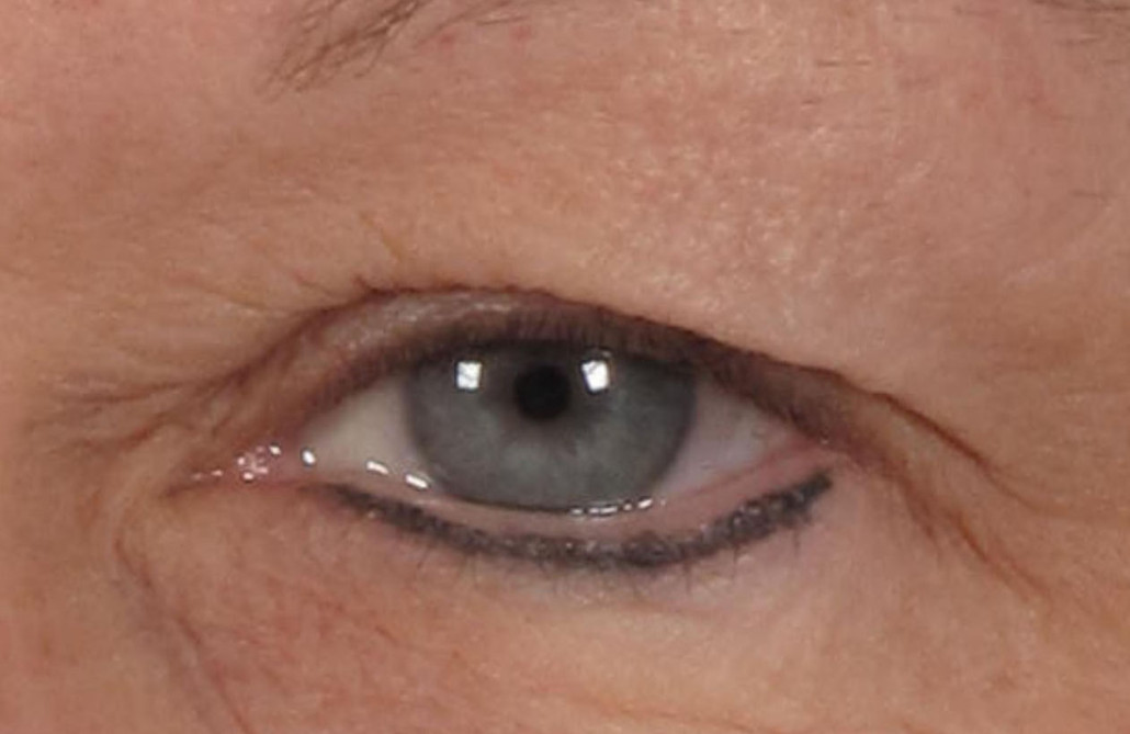 Dr. brett kotlus cosmetic oculoplastic dermatochalasis