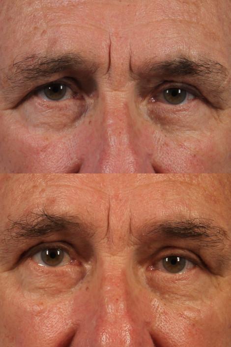 dr. brett kotlus eyebrow younger ny