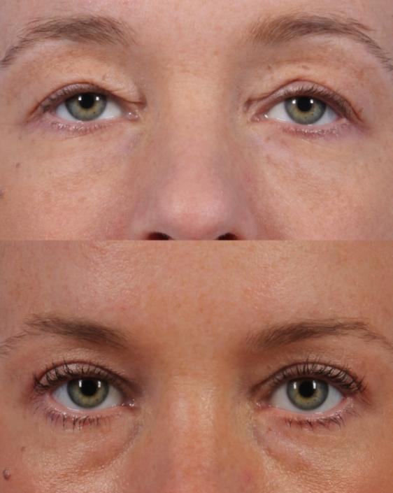 Dr. brett kotlus cosmetic oculoplastic blepharochalasis ny