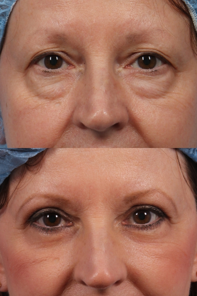 dr. brett kotlus eye bags surgery ny