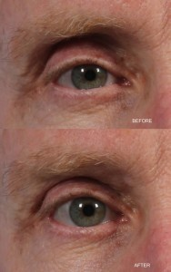 Dr. brett kotlus cosmetic oculoplastic hollow upper lid treatment