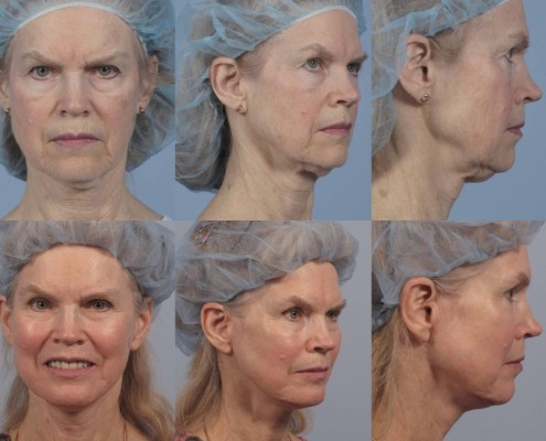 Dr. brett kotlus cosmetic oculoplastic nyc neck lift surgeon