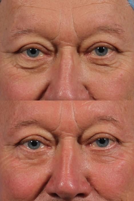 male lower eyelid skin pinch