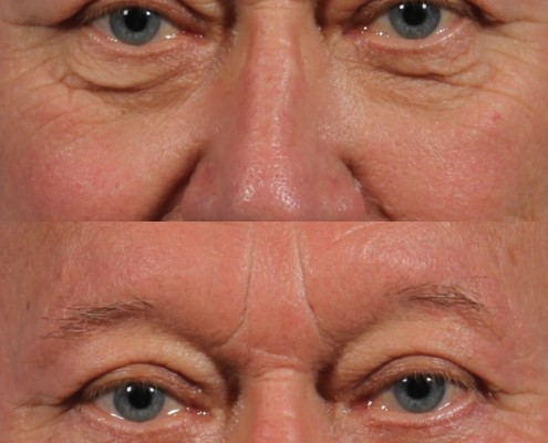 male lower eyelid skin pinch