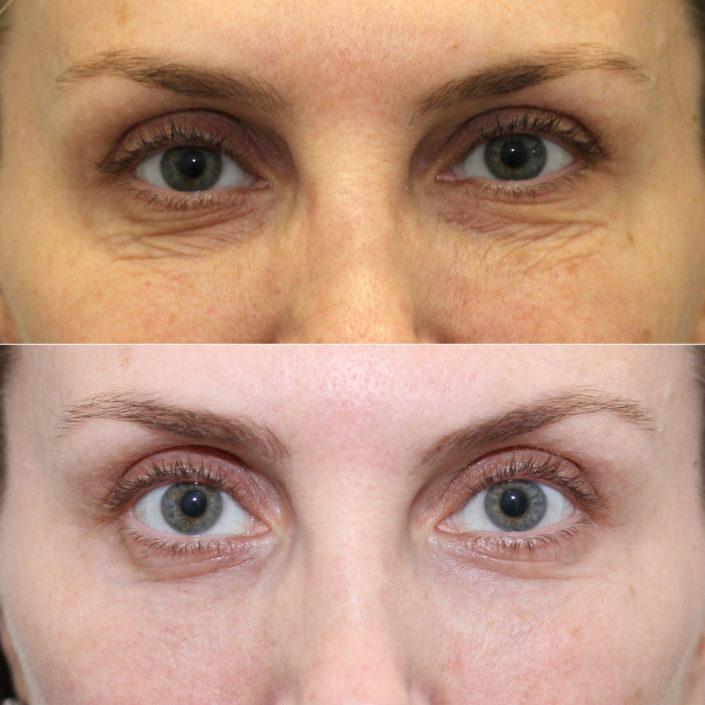 dr. brett kotlus under eye laser