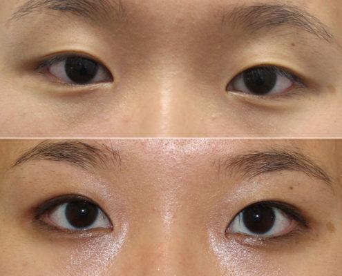 dr. brett kotlus double eyelid surgery