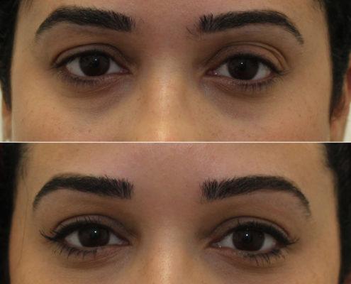 Kotlus Cosmetic Oculoplastic Surgery