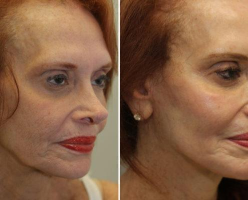 kotlus fat grafting laser and facelift