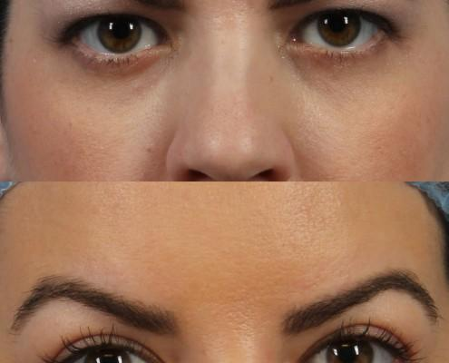 dr. brett kotlus oculoplastic nyc