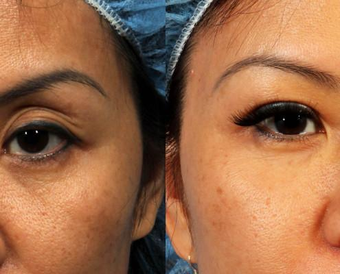eyelid fat grafting