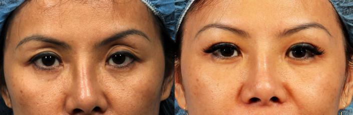 eyelid fat grafting nyc