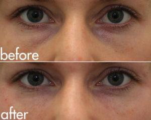 kotlus eye bags filler
