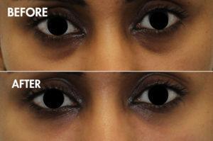 eye cannula
