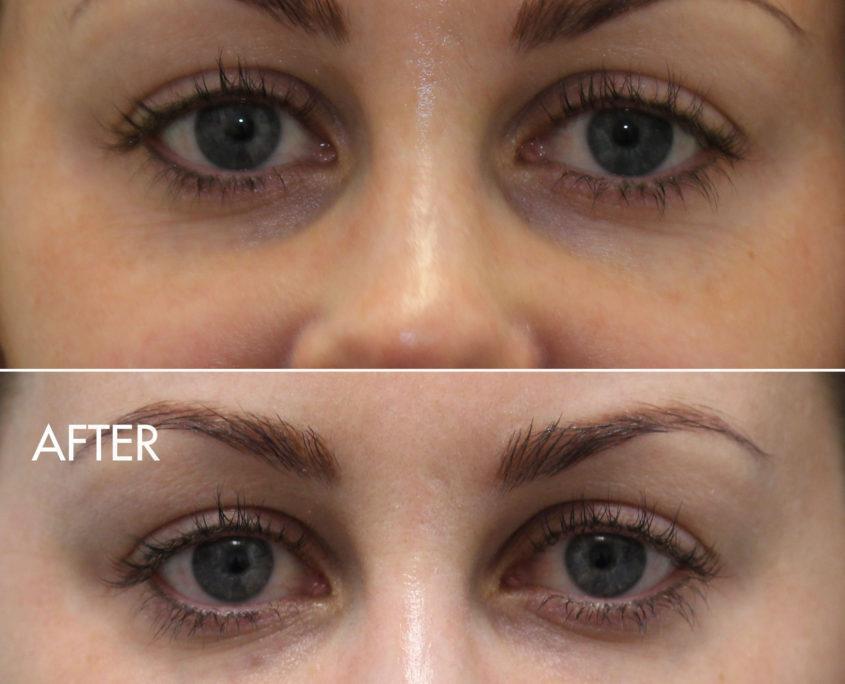 kotlus cannula eyelid filler