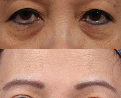 dr. brett kotlus almond-shaped eyes ny
