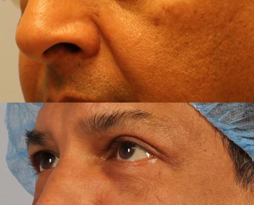 dr. brett kotlus lower eyelid lift man