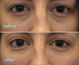 kotlus eye bags treatment: tear trough filler