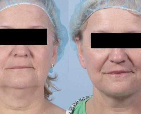 facelift with fat grafting nyc