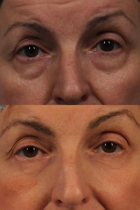 dr. brett kotlus lower eyelid surgery ny